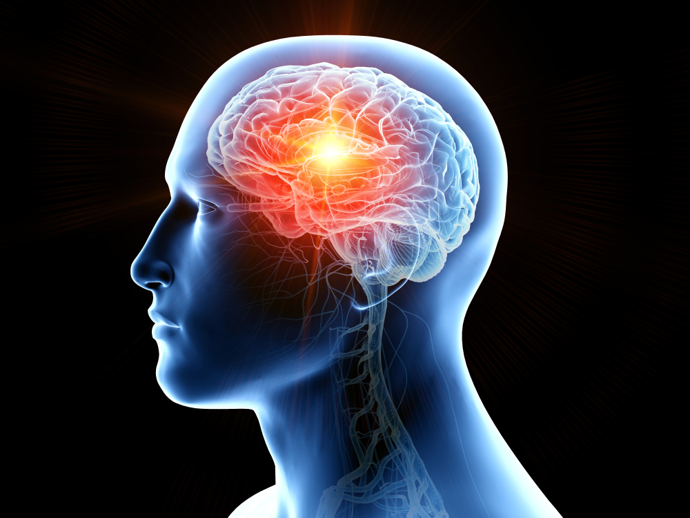 x-ray illustration of a brain tumor